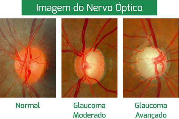 Imagem do Nervo Óptico